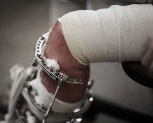 top rated personal injury attorneys
